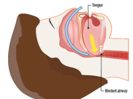 In obstructive sleep apnea, the airway is blocked. People with this condition will stop breathing and then gasp for air while sleeping.