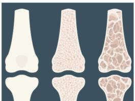 Loss of bone density leads to weak, porous bones (like those on the right) that break easily.